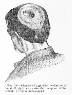 P. Hughes (1870)