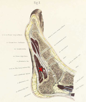 section through the adult human right foot (Braune, 1867)